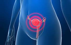 Câncer de colo do útero: saiba como se cuidar!